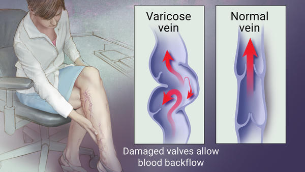 aloe vera for varicose veins